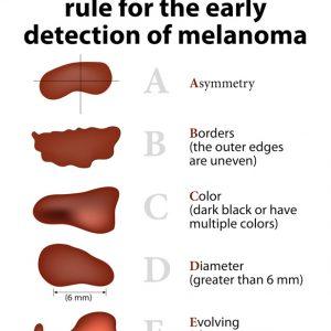 Smernice za zgodnje prepoznavanje kožnega raka melanoma.
