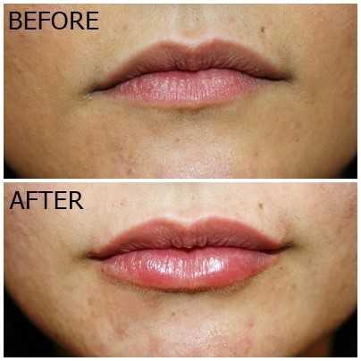 Oblikovanje ustnic